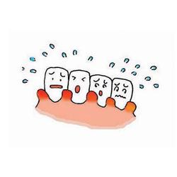 歯茎が腫れた