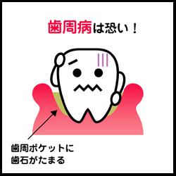歯周病の予防がしたい